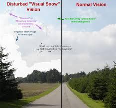 Visual Snow 2